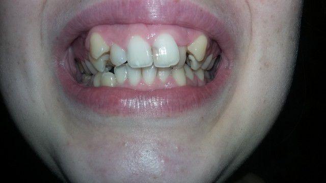 Если зуб почернел и шатается