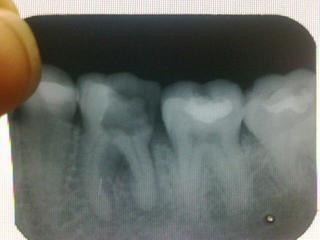 Болит запломбированный зуб мудрости