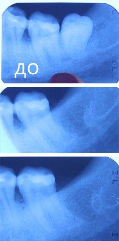 Что вкладывают в лунку зуба после удаления