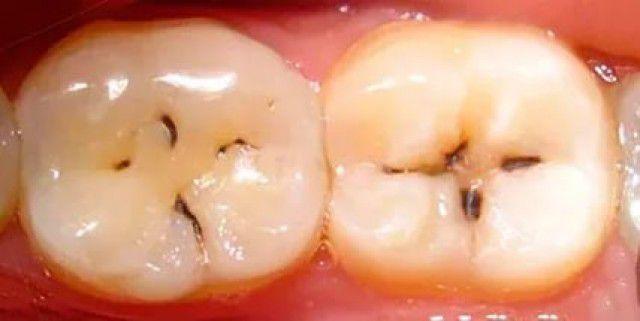 Что делать если на зубах чернота