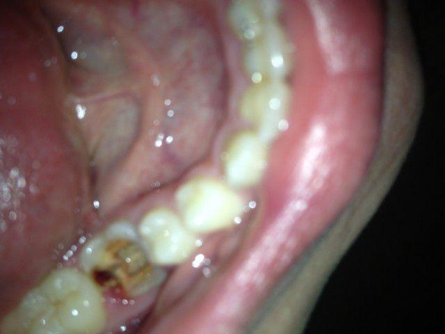 К чему снятся вылетающие зубы