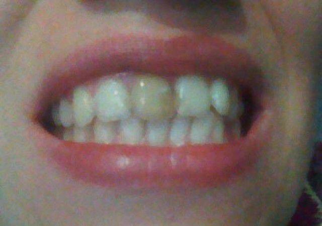Пломба потемнела на переднем зубе как отбелить