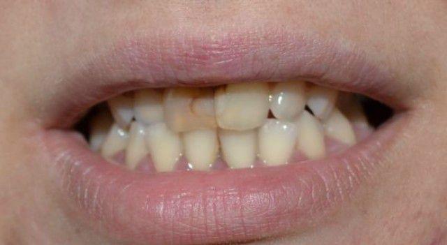 otbelivaet-li-sperma-zubi