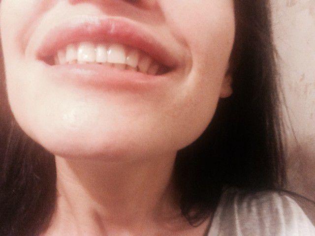 Если пробел между зубами