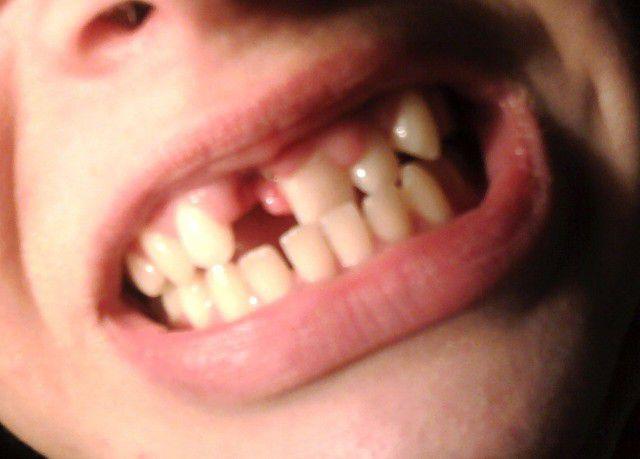Кто ходил без передних зубов