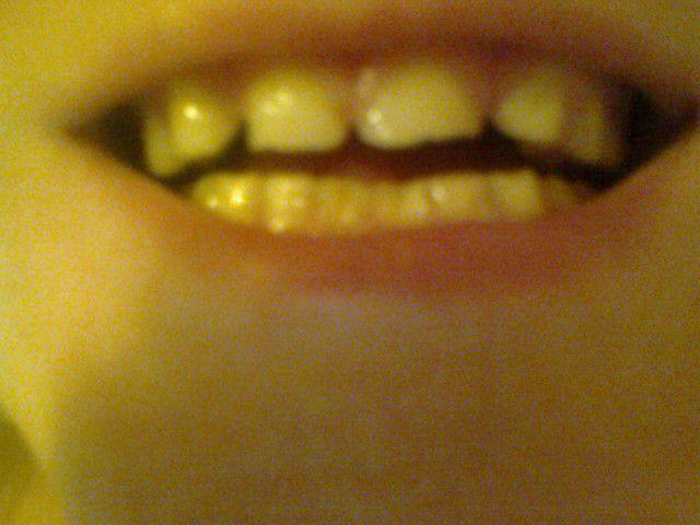 У меня очень редкие зубы