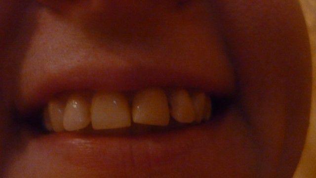 Передние зубы сместились