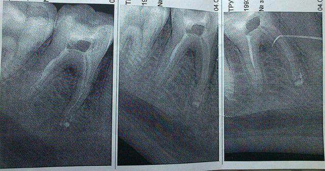 Чешется в зубе с мышьяком