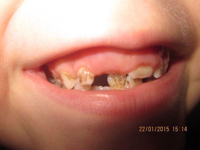 Ребенку год начали чернеть зубы