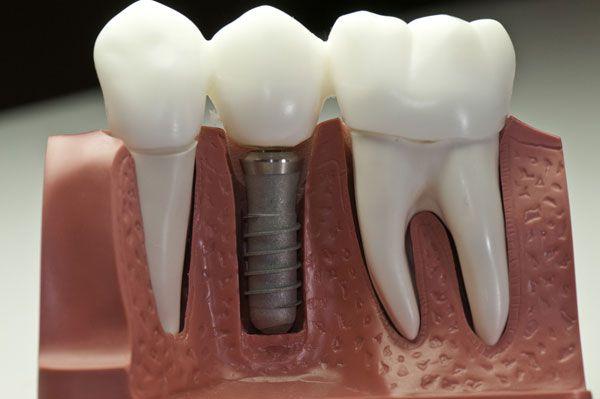 Искусственный зуб и имплантат изготавливаются из высококачественных материалов