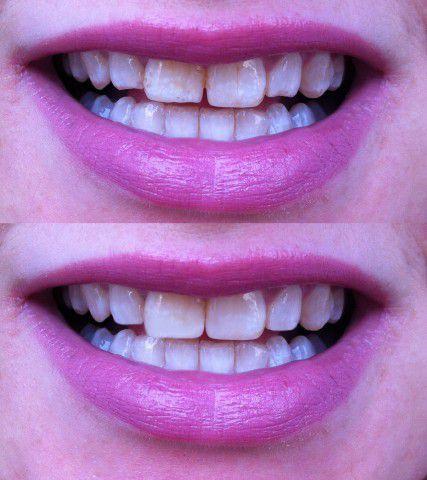 виниры на маленькие зубы