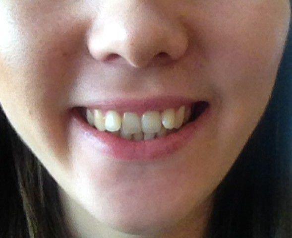 Москве у девушки торчат зубы москвы
