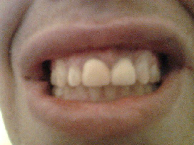 Проституткам выбивают передние зубы