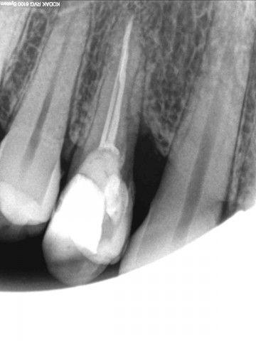 Вопрос №4167: болит десна после обточки зуба - Консультация ...