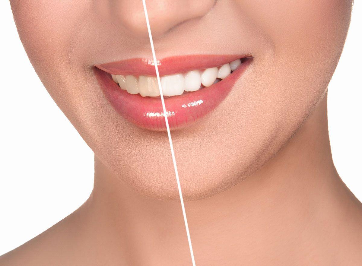 как отбеливание влияет на зубы