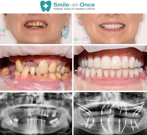 Базальная имплантация: фото до и после